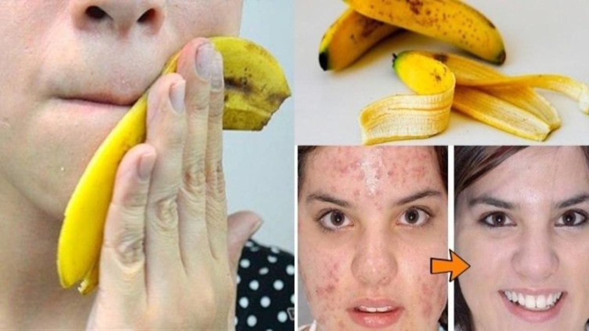Bananas for acne – Properties, Benefits of banana peels for your skin